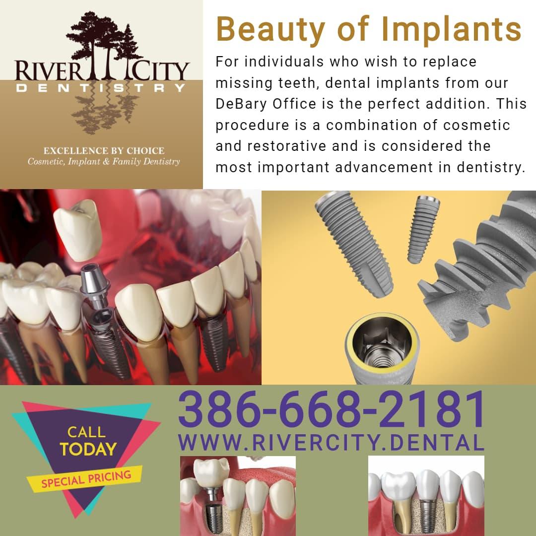 Dental Implant DeBary Florida - River City Dentistry