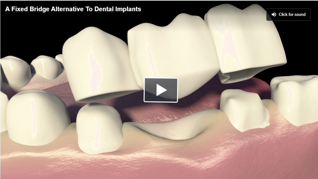 Fixed Bridges As Alternative For A Single Tooth Replacement